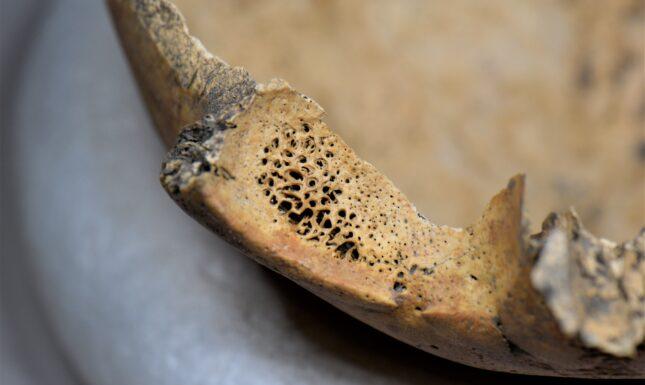 Medieval malaria skeleton